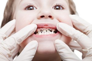 Tooth-Decay-In-Children