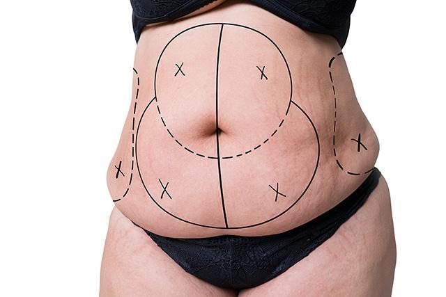 tummy tuck pregnancy