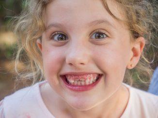 baby teeth gap