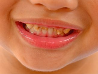 close up of children with bad teeth