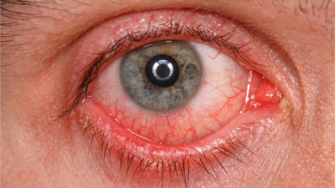 pink eye during pregnancy