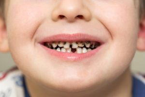 gingivitis in kids
