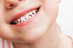losing baby teeth late